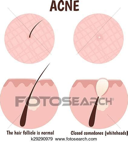 Structure of the hair follicle Clip Art   k29290979