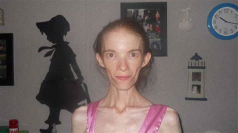 Medicaid patient with anorexia struggles to get treatment
