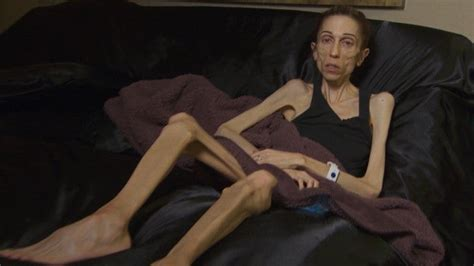 Anorexic Actress Who Weighs 40 Pounds Raises $200K to