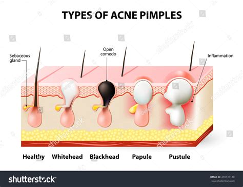 Types Acne Pimples Healthy Skin Whiteheads Stock