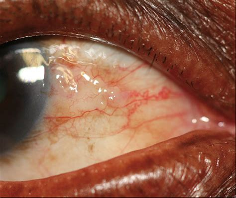 Common conjunctival lesions   Olivier   Continuing Medical